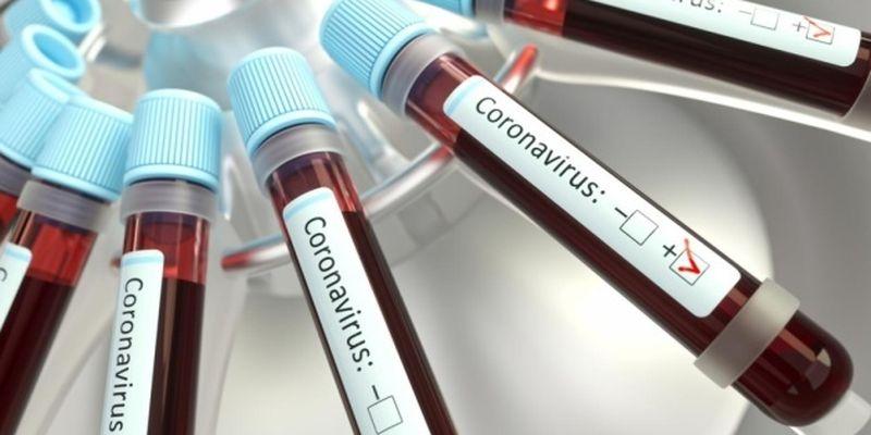 У Словаччині – перша смерть від коронавірусу