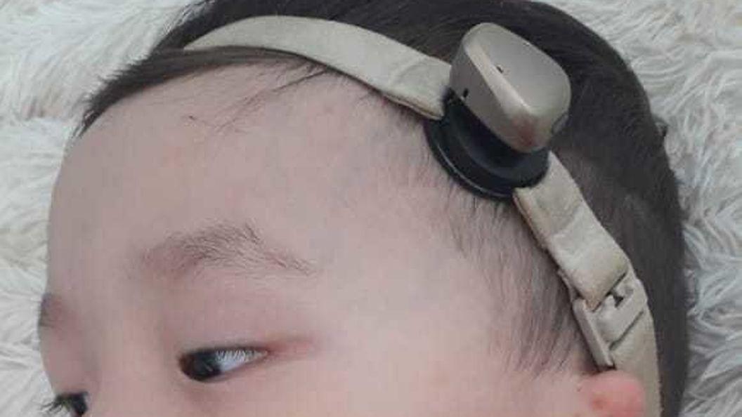 Найден мальчик, который родился без ушных отверстий