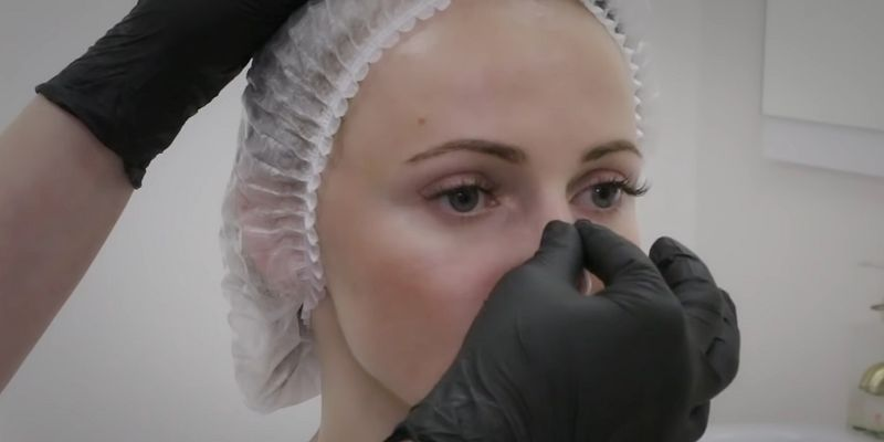 Хрящ, напечатанный на 3D-принтере, может восстановить нос после рака кожи