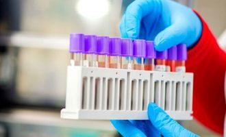 Тест на антитела: как оценить иммунный ответ COVID-19?