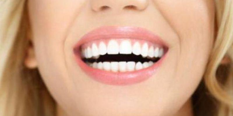 Какие продукты могут повлиять на цвет зубов